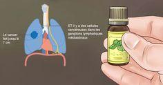 Même les scientifiques reconnaissent maintenant les facteurs puissants qui existent dans certaines huiles essentielles qui stoppent la propagation du cancer et induisent la mort des cellules cancéreuses. Leur capacité à prévenir la maladie n'est plus remise en question, en particulier en ce qui concerne le cancer. Un corps sain, de la tête aux pieds, a …