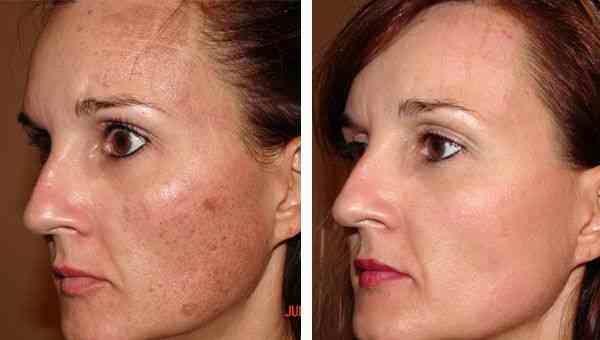 5 melhores receitas naturais para aliviar manchas no rosto   – Beleza – Estética