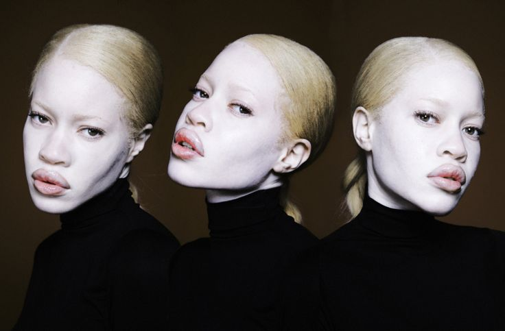 Diandra Forrest. The black albino supermodel. Too rare and beautiful.