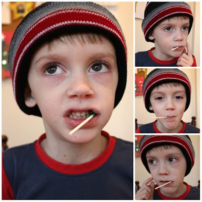 The Lollipop Game for Oral Motor Issues.