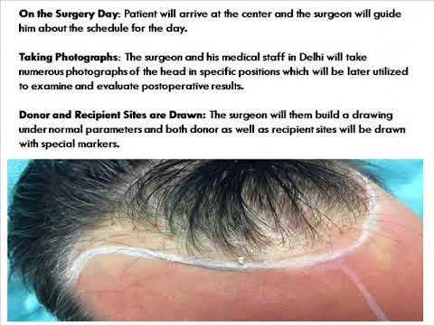sunshineskinclinic offers Best Hair Transplantation, Hair Loss Treatment, Dermatology, Cosmetic Surgery & Hair Specialist in Delhi India at Affordable cost.For more   infomation:-  http://www.sunshineskinclinic.com/hair-transplant-in-delhi/