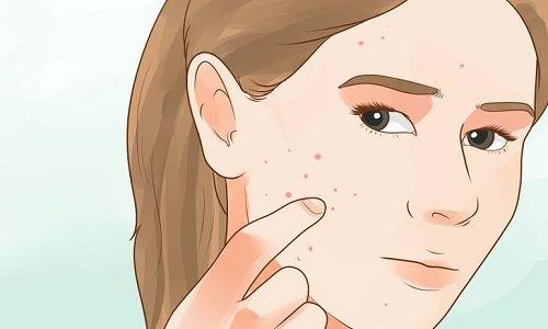 """Gli zuccheri ancora sul banco degli imputati.Per gli studiosi mandano in tilt il cervelloe in alcuni casiaumentano il rischio di tumore. Ma hanno anche una responsabilità nella formazione dell'acne.Prima causa di ricorso al dermatologo e cruccio di circa il 79% dei ragazzi. """"Esiste una correlazione diretta tra acne e resistenza all'insulina – spiegaGabriella Fabbrocini, associato [...]"""