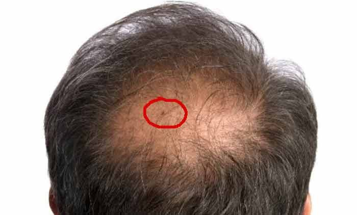 Bed Bugs in Hair Symptoms, Pictures & Get rid | Bed bugs, Bed bugs pictures, Bed bugs infestation