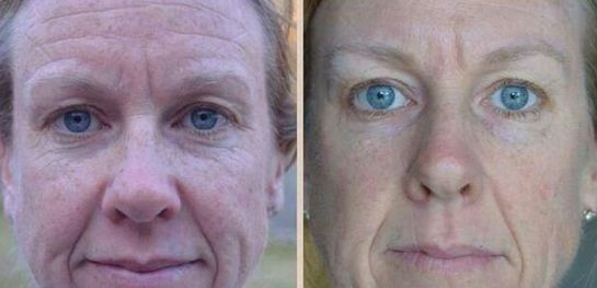 Millions Of Women And Men Are Utilizing Face Strengthening Exercises For Ultimate Youth