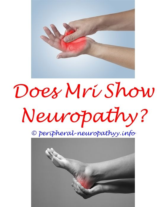 peripheral neuropathy pain relief remedies - define neuropathy medical.icd 10 code for diabetic peripheral sensory neuropathy chemotherapy peripheral neuropathy icd 10 chiropractic treatment of foot neuropathy 1526688863