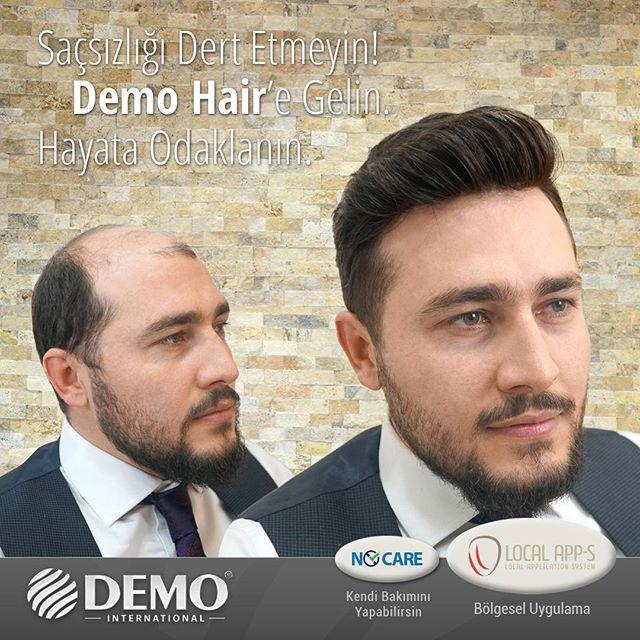 Saçsızlığı Dert Etmeyin! Demo Hair'e Gelin. Hayata Odaklanın.  Demo Hair protez saç sistemleri ile saçsızlık probleminize doğal ve kalıcı çözümler üretiyoruz. Merkezimize gelerek, artık dökülen saçlarınıza değil, Hayat odaklanın... #demohair #protezsac #sacekimi #sackiran #pelat #sacdokulmesi #erkekprotezsac #protezsacmodelleri #toppik #imaj #sacseyrelmesi http://ow.ly/IrrJ307wYZZ