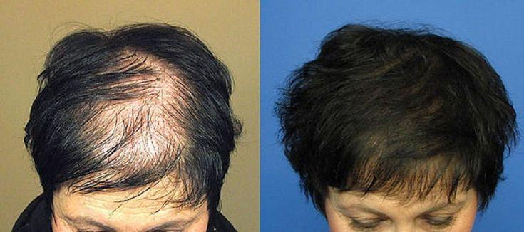 كل ما يخص عمليات زراعة الشعر للنساء