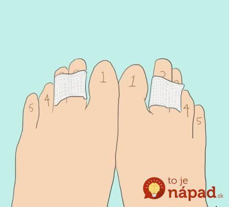 Prečo je dobré spojiť dva prsty na nohe páskou? Možno budete prekvapení!