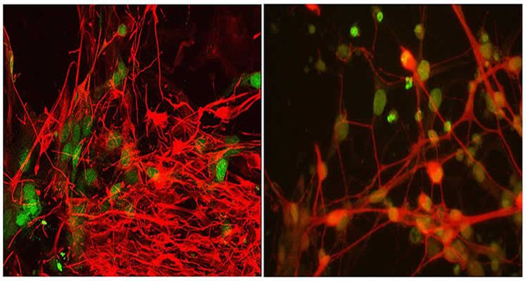 New ALS Gene and Signaling Pathways Identified - NeuroscienceNews.com - Induced pluripotent stem cell-derived motor neurons from an ALS patient (left) compared with normal cells (right). The cells are being used to study the role of the genes TBK1 and OPTN in ALS. Image credit Lab of Tom Maniatis #science #neuroscience #ALS
