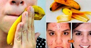 8 usos ocultos de la cáscara de banana que impactan, el #5 hará que ni pienses en tirarla