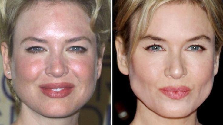 Renee Zellwegers Eyes Pop When A Corrective Bb Cream And Makeup Temper Pink Ir Rosacea Acne Treatment Rosacea Rosacea Causes