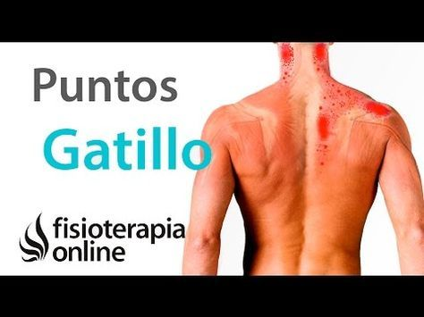 Puntos gatillo o triger points. Qué son, causas, diagnóstico y tratamiento.   Fisioterapia Online
