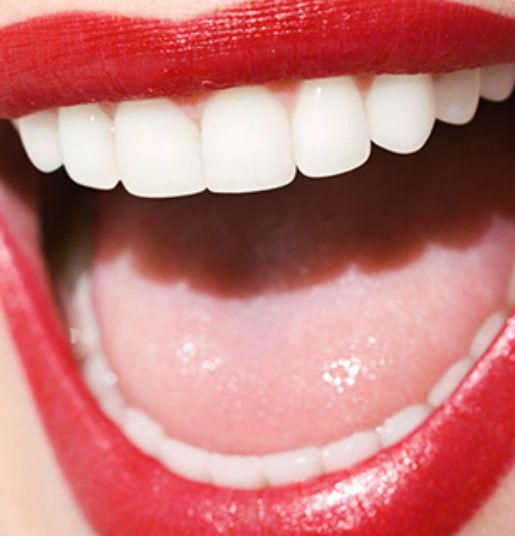 The best teeth-whitening tricks that actually work: http://on.allure.com/1LydQDy