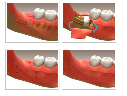 Wisdom teeth generally emerge in humans between the ages of seventeen and twenty one. They are the last set of molars after which there is no more tooth development. Wisdom teeth can pose a lot of risks. Even though they are healthy, the misalignment can pose major problems. Under such circumstances, the only alternative is extraction of wisdom teeth.