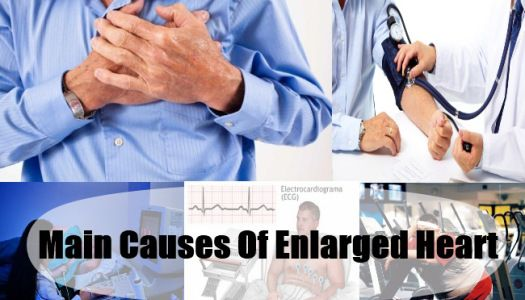 Main Causes Enlarged Heart