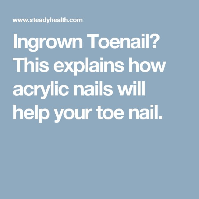 Ingrown Toenail? This  explains how acrylic nails will help your toe nail.