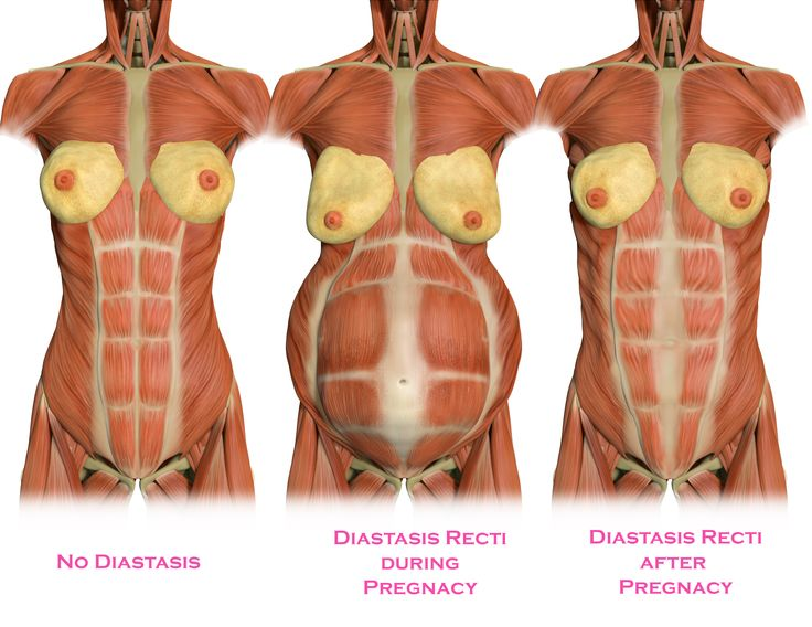 Watch this video and learn the Do's and Dont's of postnatal core work and why some moms shouldn't do crunches. What is diastasis recti? Abdominal separation that looks like this on the inside. Left and right sides look and feel separated. #momsintofitness #diastasisrecti #postnatal #core