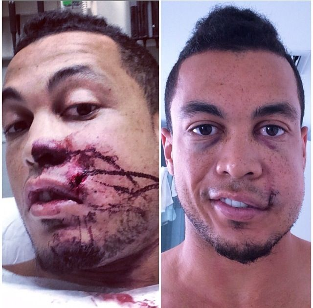 Giancarlo Stanton- Hit by an 80 mile and hr. pitch to the face... The day it happened 9/10, vs today 9/17. Looking better than I thought!