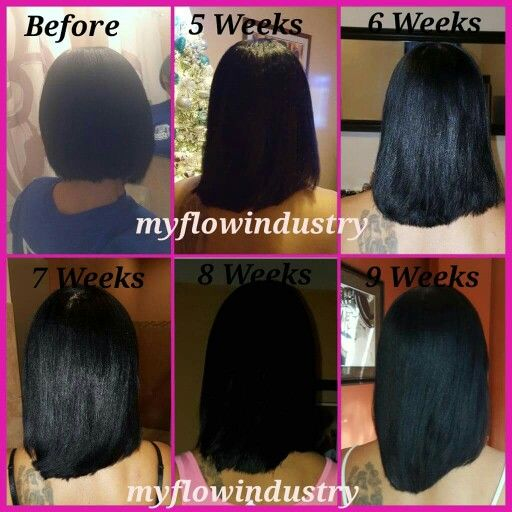The Best Product For Hair Loss Fall 2 Month Experiment With Photos