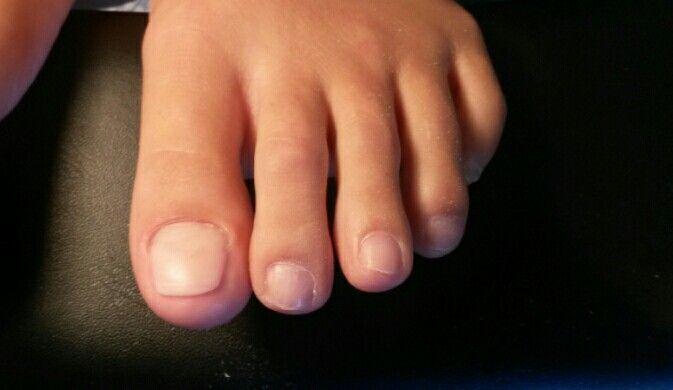 Free form sculpted acrylic toenail