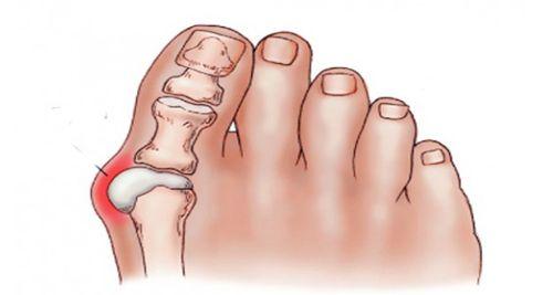 Les oignons de pieds sont une affection qui provoque la déformation de l'articulation du gros orteil et son développement a tendance à être associé à des facteurs génétiques ou l'usage inadéquat de chaussures utilisées fréquemment.