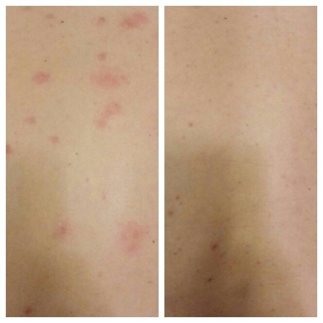 My husband started breaking out on his back, so I decided to try applying the luminesce serum. This is a before and after of just one night with the serum! Needless to say, we were both amazed! Contact me, visit my Facebook page, or go to www.inthismoment.jeunesseglobal.com