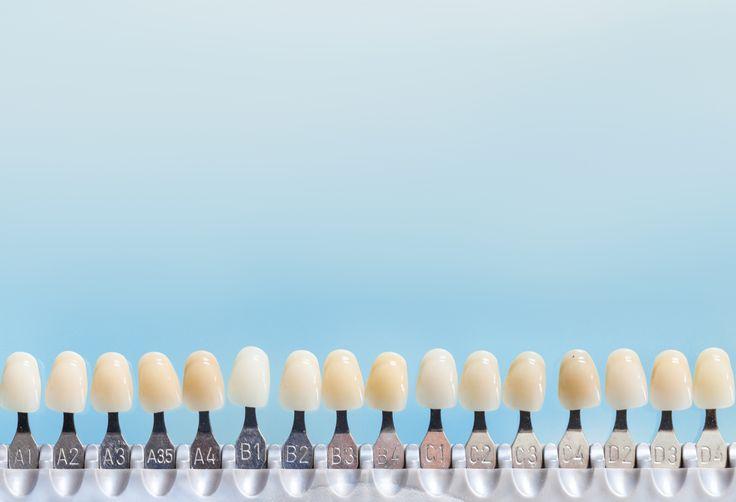 A lente de contato dental é um dos métodos que tem sido bastante procurado nos consultórios odontológicos. Homens e mulheres vêm optando por esta técnica para alcançar o sorriso tão desejado. Leia mais sobre o assunto em http://www.sorrisoideal.com.br/lente-contato-dentes
