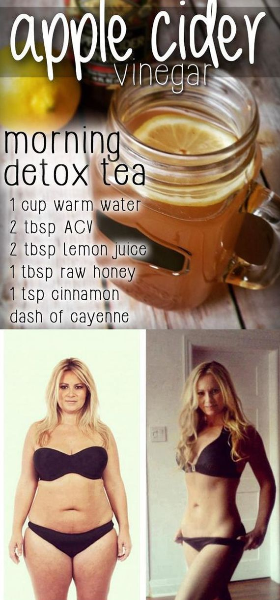 Lose Weight Wisely: How To Use Apple Cider Vinegar To Cure Your Acne