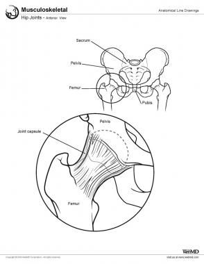 Reduction of Posterior Hip Dislocation article