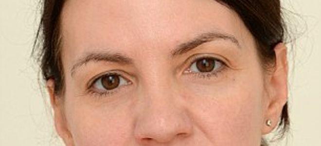 Σκέψεις: Δείτε πώς έγινε μια 40χρονη Βρετανίδα πίνοντας 3 λ...