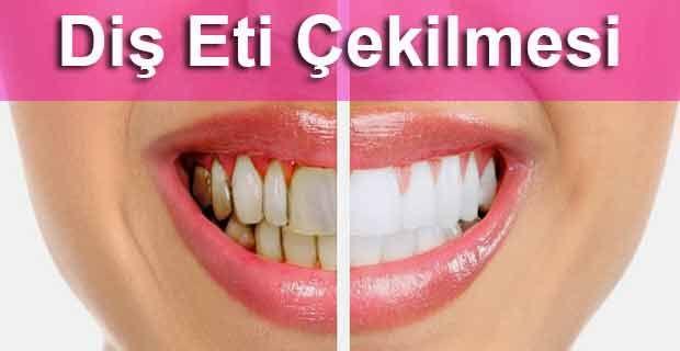 Diş Eti Çekilmesi Neden Olur Ne iyi gelir ? Diş eti çekilmesi neden olur bitkisel çözüm diş eti çekilmesi doğal çözüm diş eti çekilmesi evde çözüm #Diş, #Doğal ,#Çözüm, #Tedavi