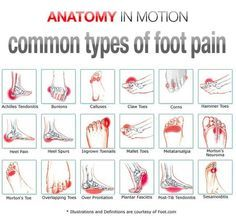 Foot pain Excellent chart. No matter where the pain is, having this lotion handy will give relief. http://PainKickers.com/back-injuries/