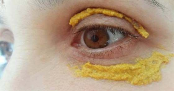 Medicinas Naturales: Ella puso cúrcuma alrededor de sus ojos, y 5 días después, algo increíble sucedió!