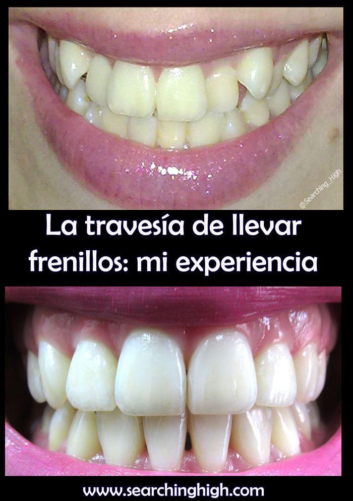 En esta entrada les describo y muestro con detalles mi experiencia teniendo frenillos, su proceso y el resultado final, que hizo que todo valiera la pena.    #spanish #bblogger #braces #ortodoncia #beforeandafter #antesydespués #teethcrooked #frenillos #dentist #dentista #experience #personal #TMI