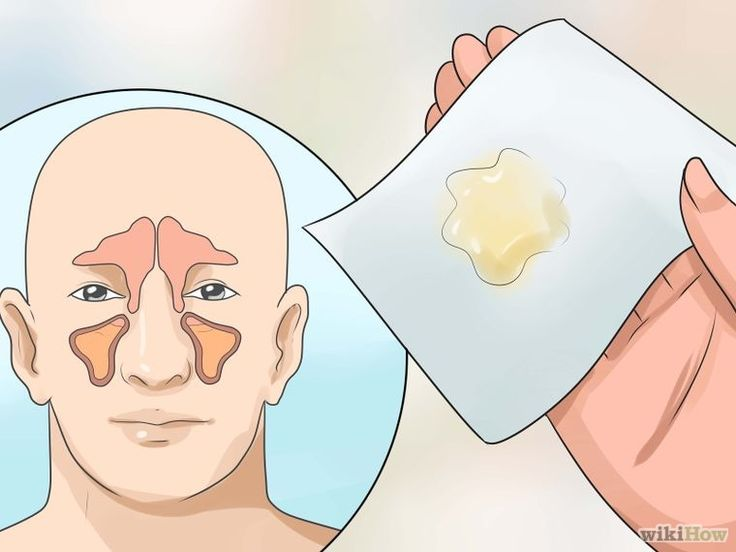 17 best mucus phlegm congestion remedies images on pinterest get rid of mucus ccuart Images
