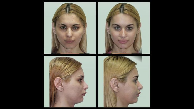Transgender surgery - Male to Female & Female to Male - HD