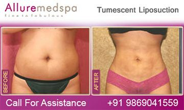 Tumescent liposuction is a new liposuction procedure that used special fluid to remove excess fat from various parts of the body and improve the shape of the body.