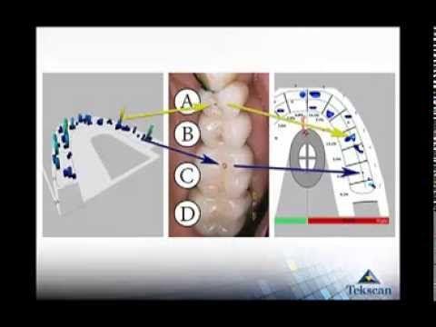 Learn how #TScan occlusal analysis can improve your Dental practice! #free #webinar #tekscan