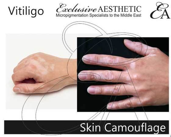 Vitiligo treatments available at Exclusive Aesthetic. Vitiligo is a long term skin condition characterised by patches of the skin losing their pigment. Exclusive Aesthetic provides specialist Skin Micropigmentation to add pigment to blend the affected area to the surrounding skin. Read more about the process here - http://exclusiveaesthetic.com/vitiligo/ #vitiligo #SkinMicropigmentation #GetHealthyStayHealthy #beauty #pigmentation #vitiligoworld #vitiligoawareness #Health #Dubai #Dubaiwomen