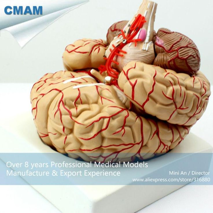 CMAM-BRAIN07  Life Size Human Brain with Arteries - 9 Parts, Anatomy Models > Brain Models