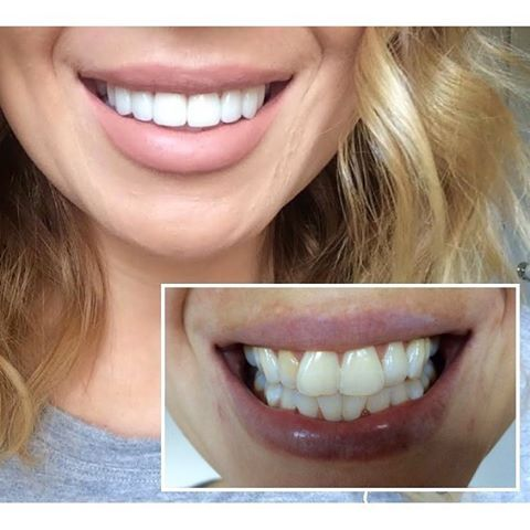 Complete Hollywood smile makeover created on the Gold Coast! 🙌 This stunning client achieved her perfect new smile with 8 Porcelain Veneers + ZOOM Whitening!  Get this Smile Makeover on the Gold Coast which includes 8 Porcelain Veneers + Philips ZOOM Whitening + Check Up, Scale & Clean for $5,395. Live interstate? See our accommodation options on our CosMediTour Dental website or call 1300 000 MED to enquire.  #smilemakeover #cosmeditour #cosmeditourdental #goldcoast #hollywoodsmile…
