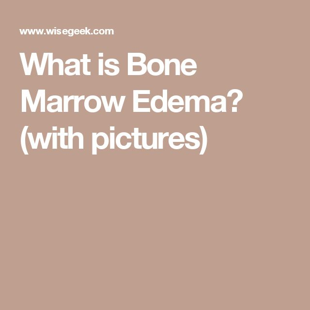 What is Bone Marrow Edema? (with pictures)