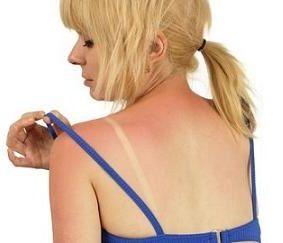 Rimedi per le scottature solari e per gli eritemi, come curare la pelle in caso di scottature solari con rimedi naturali, dal bicarbonato all'aloe vera.