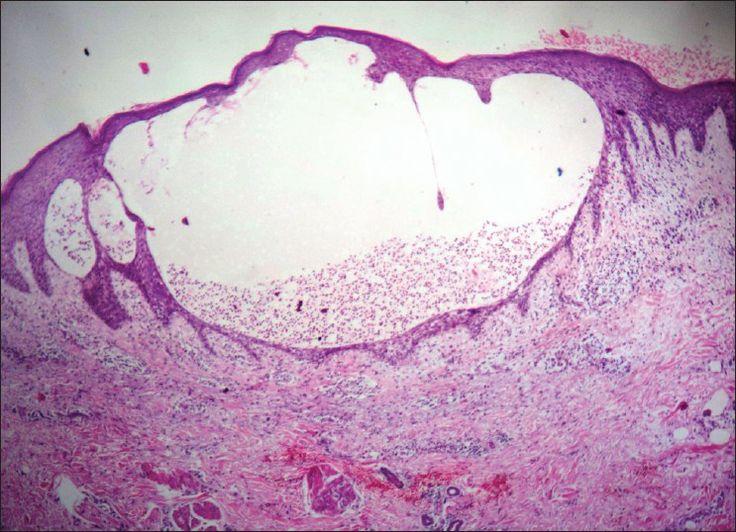 18 Best Lichen Sclerosus Images On Pinterest Lichen