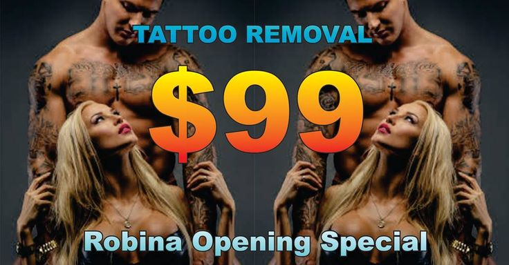 $99 TATTOO REMOVAL Eraze Tattoo Removal Specialists Robina Opening Special To book call 56361529 T's&C's apply