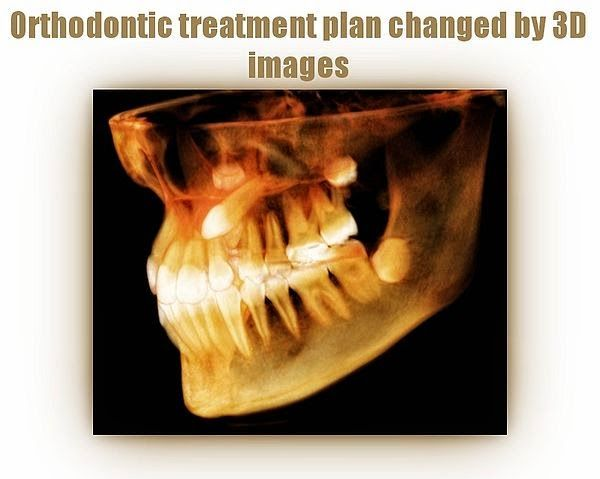 PDF: Orthodontic treatment plan changed by 3D images | Ovi Dental