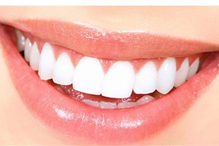 Lente de contato para dente corrige imperfeições