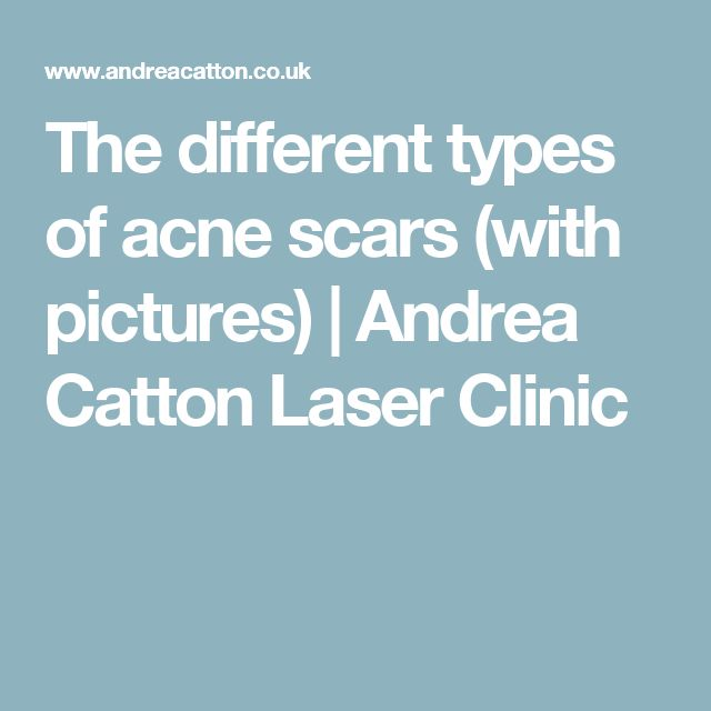 The different types of acne scars (with pictures) | Andrea Catton Laser Clinic #typesofacne