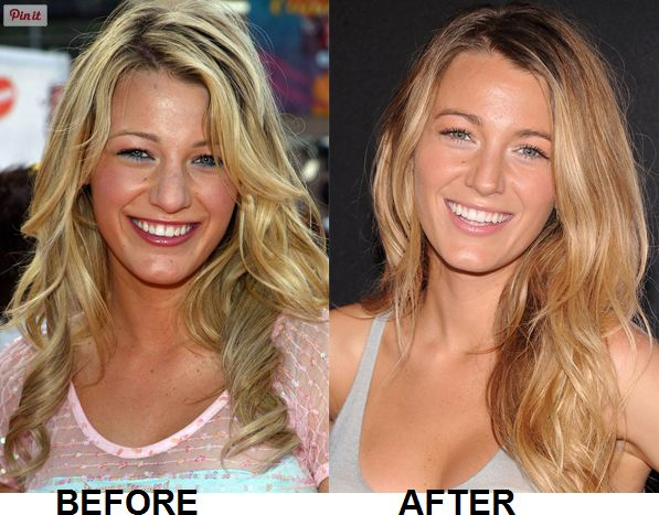 Did Blake Lively get a nose job? The answer to this question is YES. A Blake Lively nose job took place sometimes in 2013. Rumors of several nose jobs!