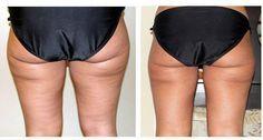 It works! Anti cellulite wrap with the apple cider vinegar  #evatornadoblog